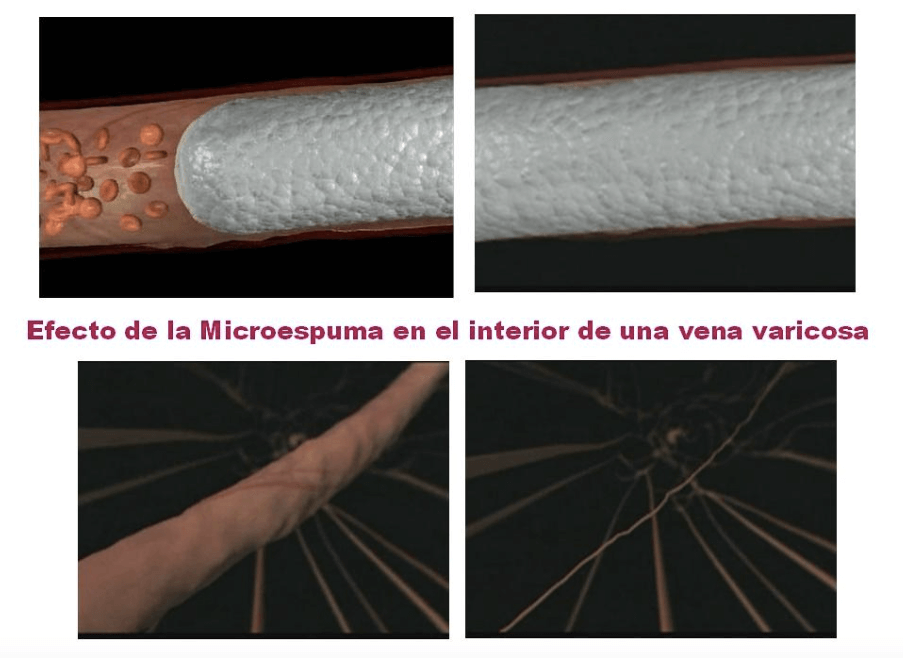 microespuma varices